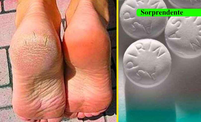 Aspirinas para pies duros y callosos descubre el secreto de muchos para suavizar sus pies con esta receta