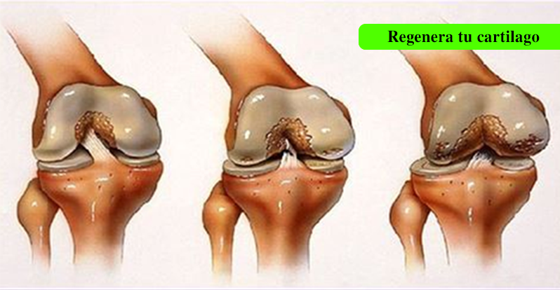 El dolor de rodilla es un daño del cartílago, así que esta es la mejor manera de regenerarlo naturalmente.