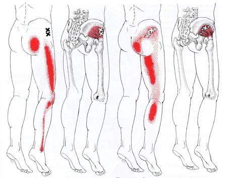 Dolor de la ciática y la espalda: remedio casero para aliviar por completo