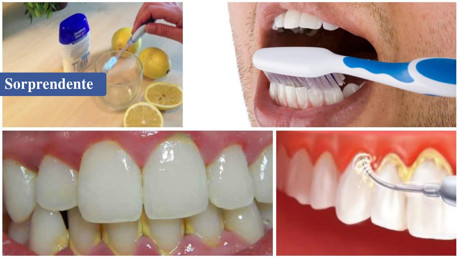 Enjuaga tu boca por 1 minuto con esta MEZCLA Y ELIMINA EL SARRO y la placa acumulada de tus dientes.