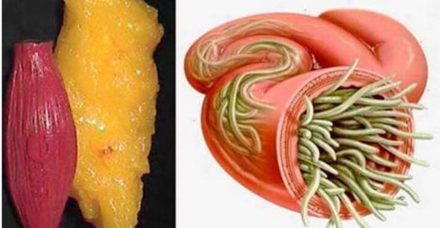 Elimina los parásitos intestinales, y los depósitos de grasa con estos dos sencillos ingredientes