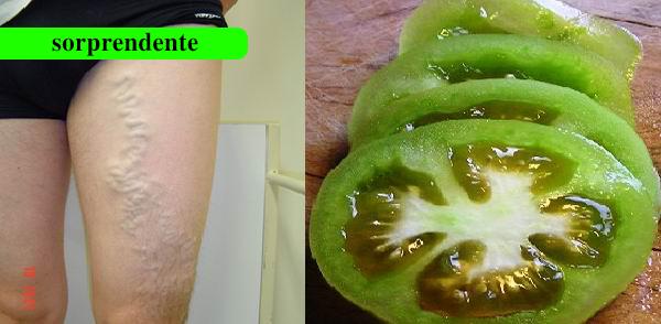 Cómo curar las venas varicosas El uso de tomate