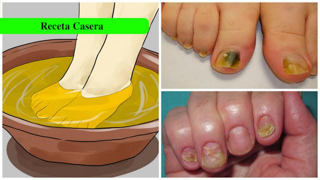 Solo con 3 ingredientes puedes eliminar los hongos de las uñas para toda la vida
