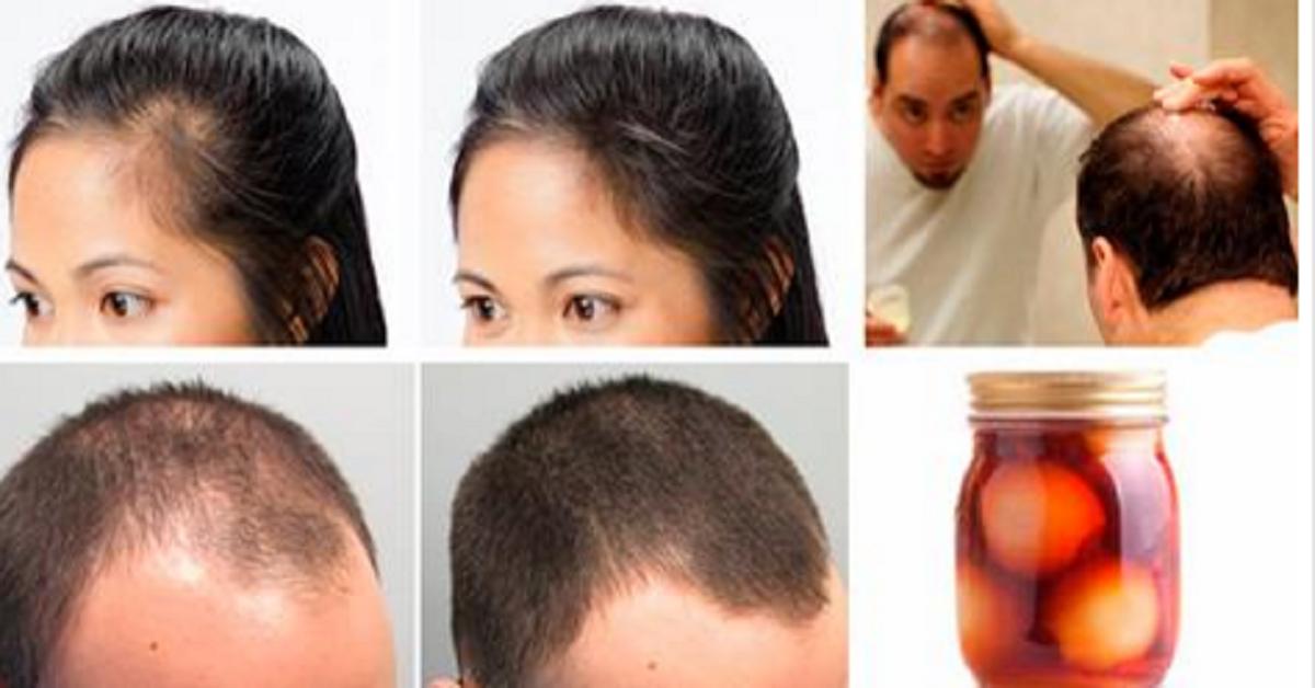 ¿Quieres recuperar tu cabello? Tratamiento casero para la calvicie