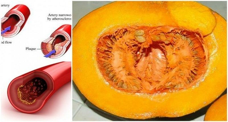 Mantén Los Lípidos, La Glucosa, El Colesterol Y Los Triglicéridos Nivelados.