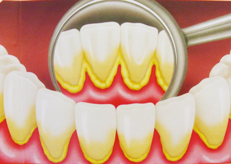Usted tiene sarro en los dientes? quitarlo fácil con estos 4 remedios