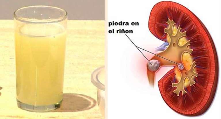 Mira cómo sale expulsada hasta la última piedra del riñón con solo beber media taza de esta bebida