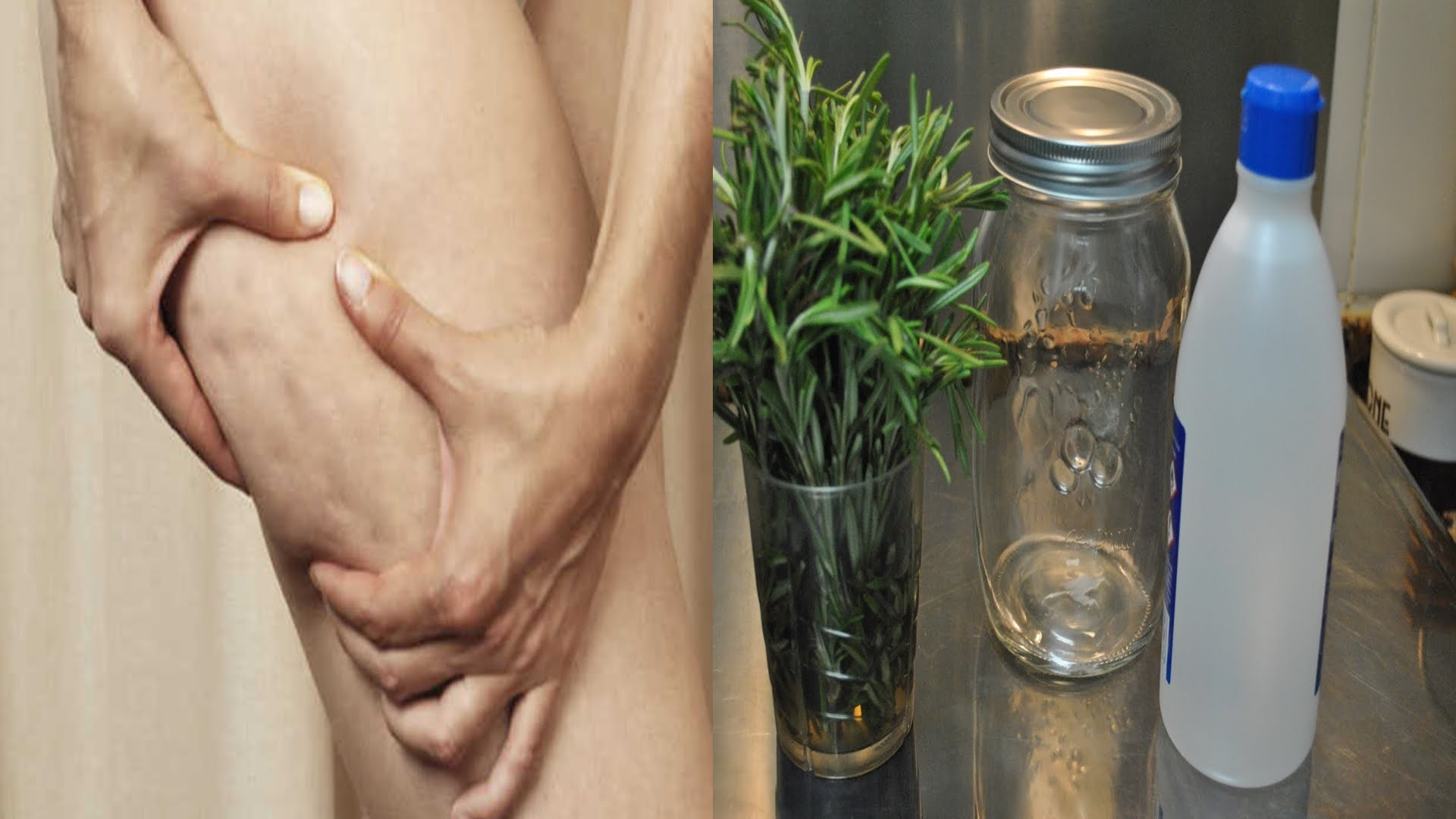 Prepara alcohol de romero y elimina la celulitis, várices y los dolores musculares
