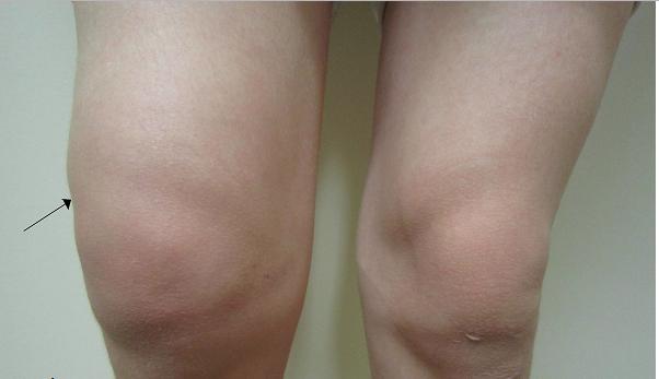 Este es el remedio mas efectivo para eliminar el dolor e inflamación de rodilla en cuestión de minutos