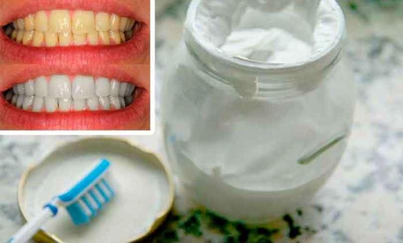 Olvidate del mal aliento, el sarro y la placa con esta crema dental casera blanqueadora de dientes