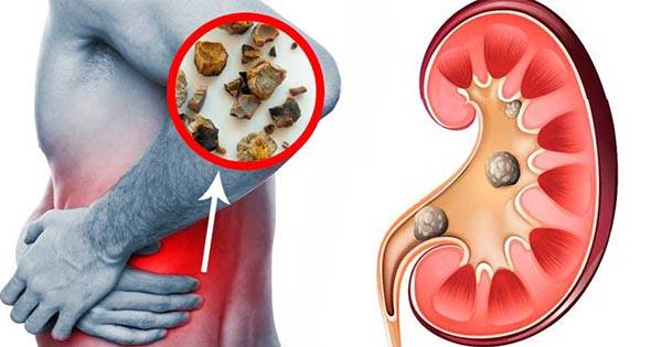Cómo eliminar cálculos renales naturalmente