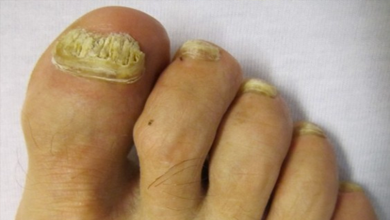 Remedios caseros para eliminar el hongo de las uñas
