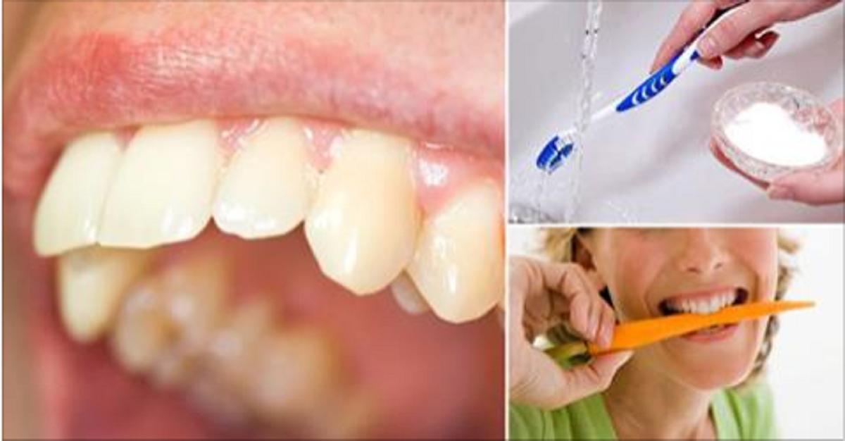 5 remedios caseros para eliminar el sarro de los dientes