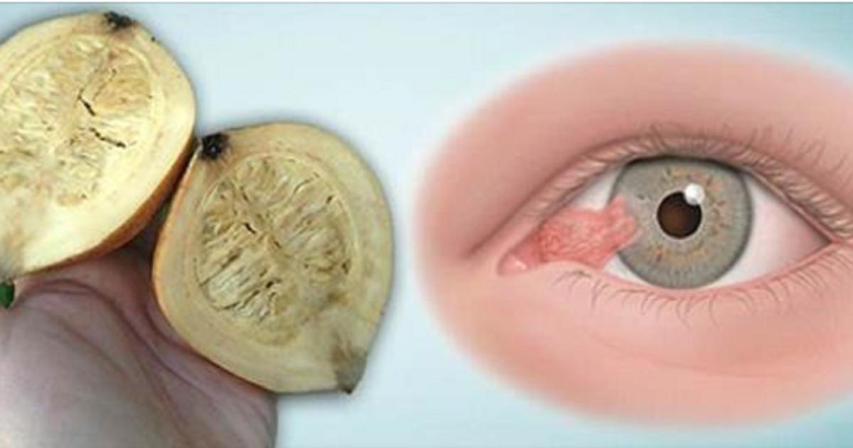 Este es el último remedio para mejor la visión. Tomar antes de dormir y en la mañana vas a tener el 80% de su visión restaurada..!!