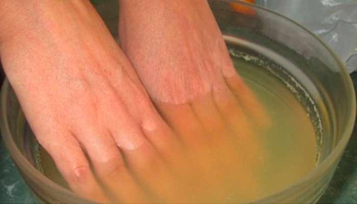 Sumerge tus manos en esta solución para Aliviar el dolor de Artritis!