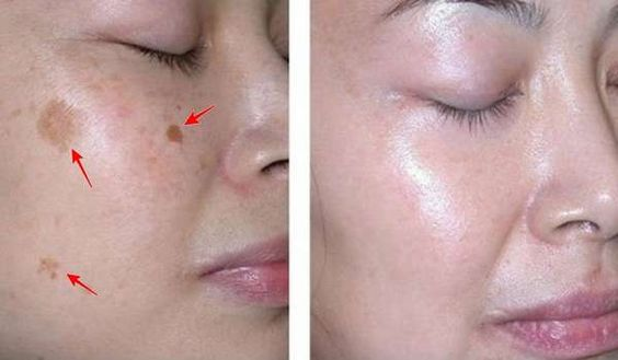 Elimina las manchas de su cara en sólo 3 noches