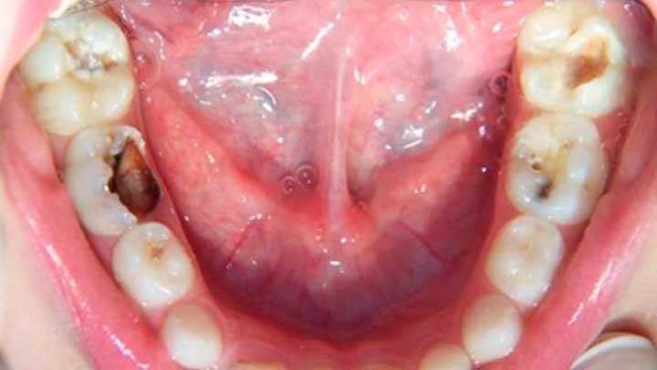 Si usas esta medicina tus dientes comenzaran a regenerarse