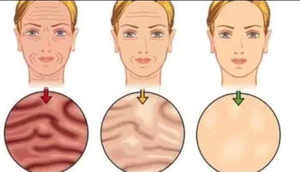 Método casero para eliminar las arrugas