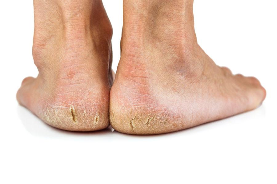 Método casero para lograr unos pies perfectos y suaves
