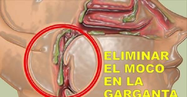 Cómo deshacerse del moco o flema en su garganta en 2 minutos
