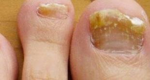 hongos de las uñas