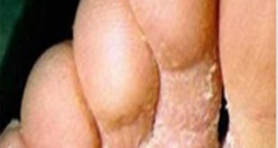 hongos de los pies