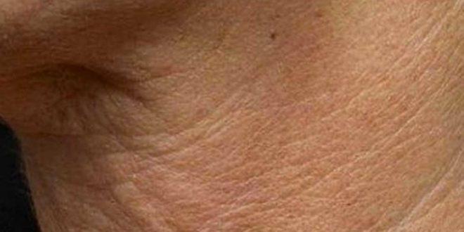 arrugas en el cuello