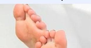 callos de los pies
